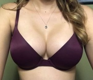 eugene-kim-1-300x259 Breast Augmentation Beverly Hills | Los Angeles CA