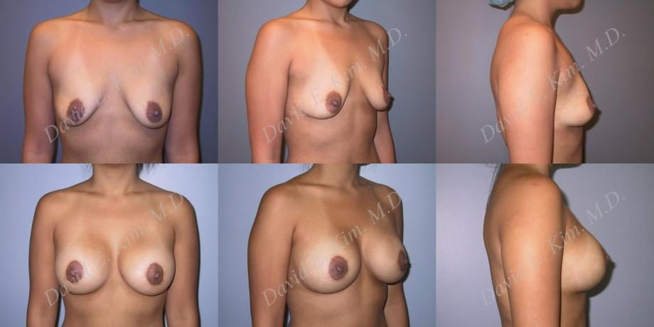 Before / After Image