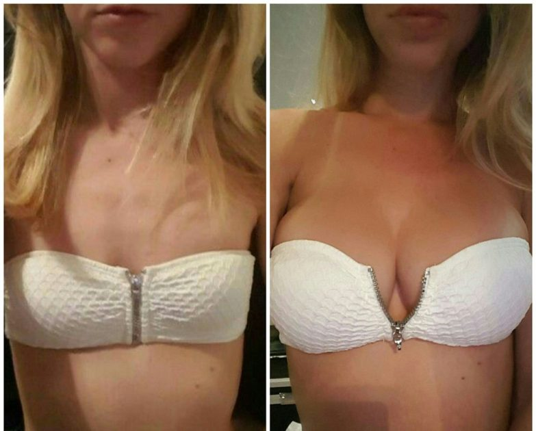 Opinion you 600cc breast augmentation before after sorry, that