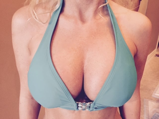 Topic 600cc breast augmentation before after excellent phrase